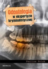 Odontologia w ekspertyzie kryminalistycznej — Paulina Polak